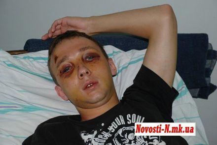 Парня жестоко избил милиционер. Фото novosti-n.mk.ua