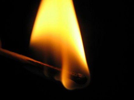 Мужчина в тяжелом состоянии доставлен в ожоговый центр / Фото: unewworld.com