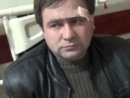 Журналист плюнул в ГАИшникаФото: Дорожний контроль