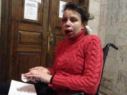 Тетяна Чорновіл, побиття Фото Алексея Гриценко