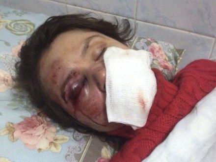 Татьяна Чорновил после избиения / Фото: УП