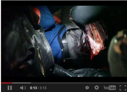 На соорганизатора харьковского Евромайдана напали с ножом
