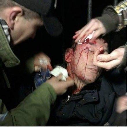По словам Ирины Луценко, ударов по голове было около 10  Фото Andriy Kovalov