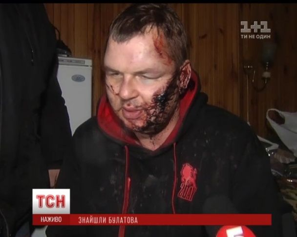Bulatov told how he had been tortured/ТSN