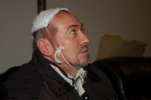 Харьков, активисті ЕМ пострадавшие в столкновениях / МедиаПорт