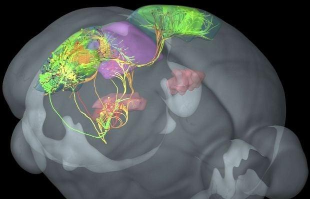 Сканирование мозга покажет, насколько умён человек