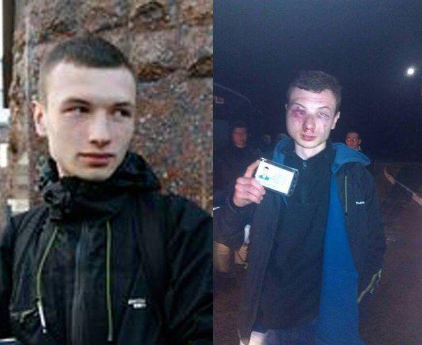 Свободовец Сергей Бондарь до и после Чутово
