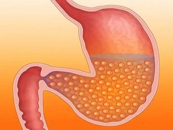 как похудеть в верхней части тела