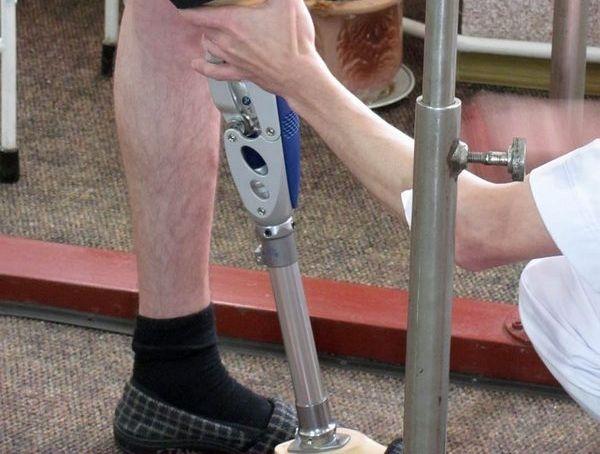 протез раненные / Фото УНИАН