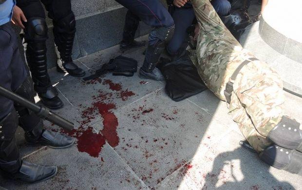 Three killed and dozens wounded in clashes near Rada / facebook.com/sasko.laps