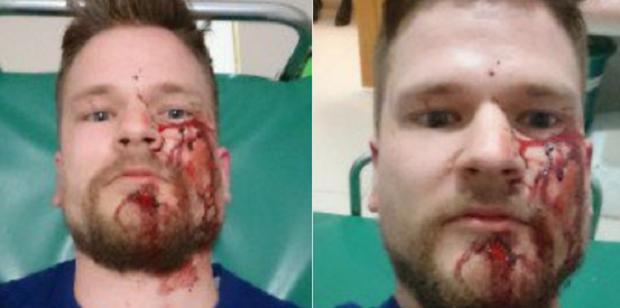 Один из пострадавших - норвежский журналист Ойтену Уинстад / @RuslanLeviev