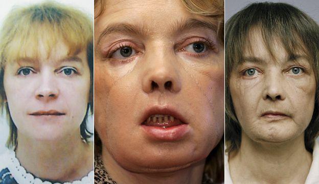 Француженка, которой первой вистории пересадили лицо, скончалась