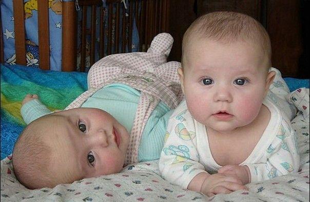 Ученые пояснили, почему близнецов нужно рожать на37 неделе