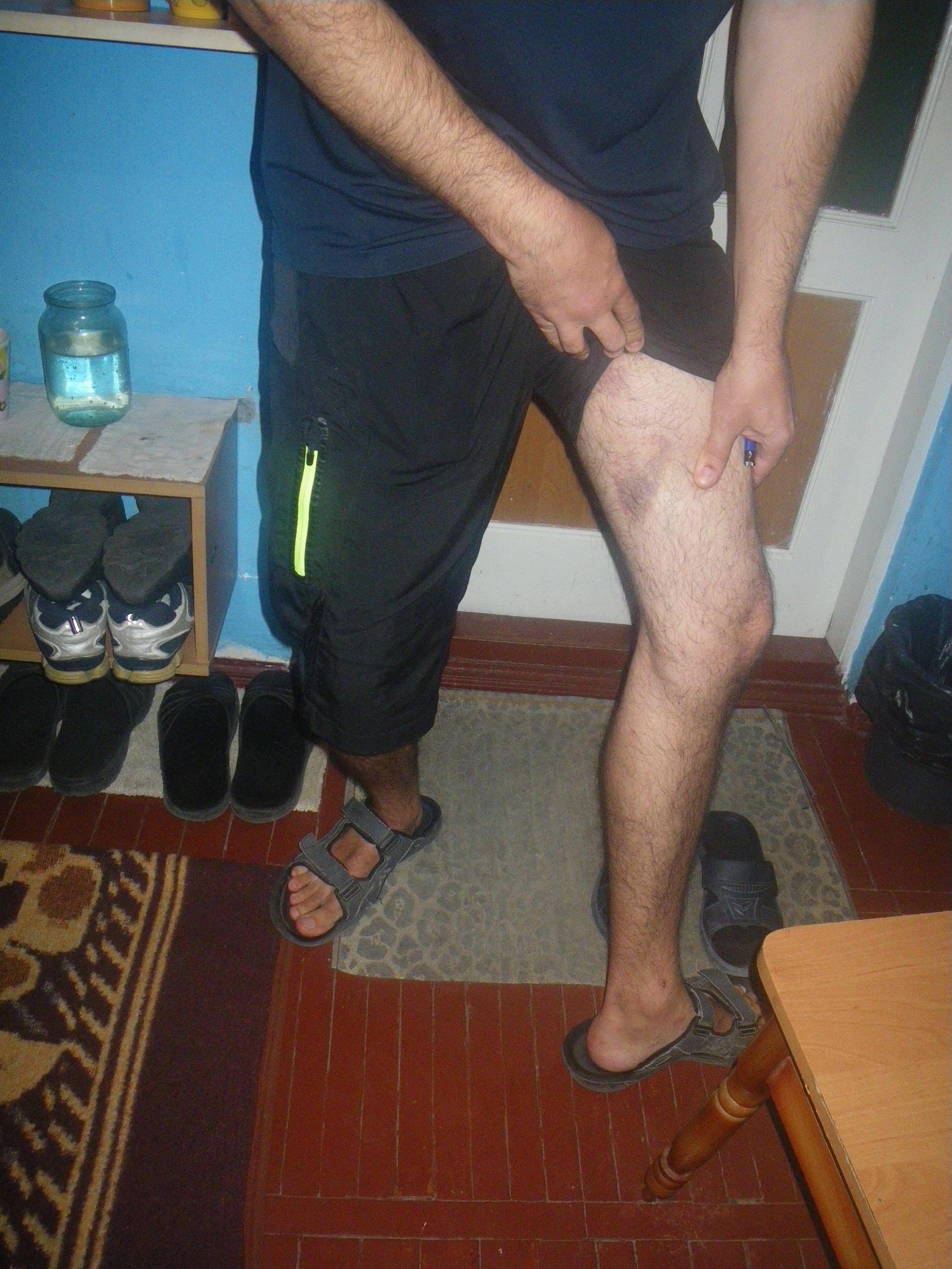 Учасники візиту зробили фотознімки із наявними тілесними ушкодженнями / ombudsman.gov.ua