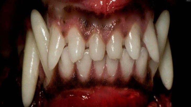 На Херсонщине собака разорвала лицо девятилетней девочке photo