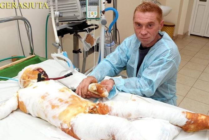 Bat'ky kynuly dytynu v likarni / foto gerasjuta.com.ua