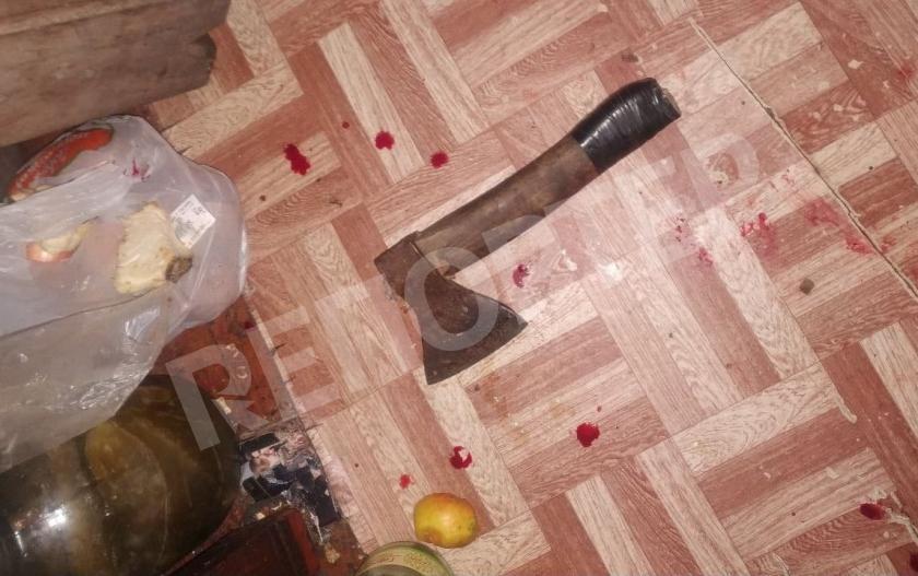 Днепрянин пытался топором отрубить голову женщине: СМИ раскрыли