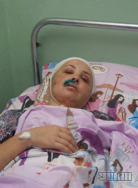 Жертва избиения и изнасилования в поселке Врадиевка (Николаевская область) Ирина Крашкова в больничной палате