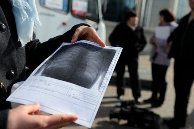 Результаты флюорографии, полученные благодаря обследованию на передвижном флюорографе. Киев