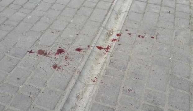 кровь, Одесса / Valeriya Ivashkina / facebook.com