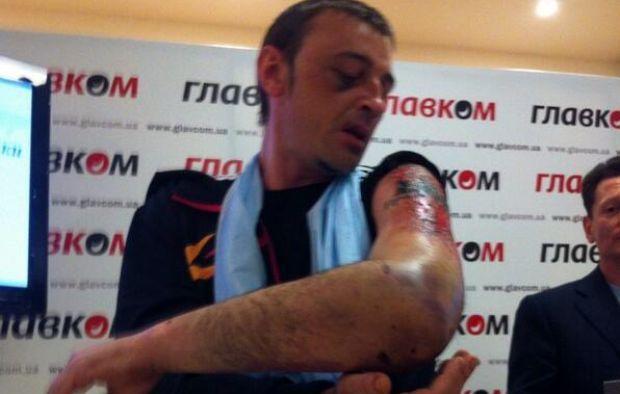 Террористы пытались срезать тауировку у шахтера ламопочкой / @novostidnua