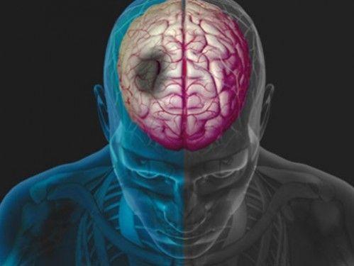 Ученые сканировали мозг переживших инсульт в течение 12 месяцев \ Фото: webmd.com