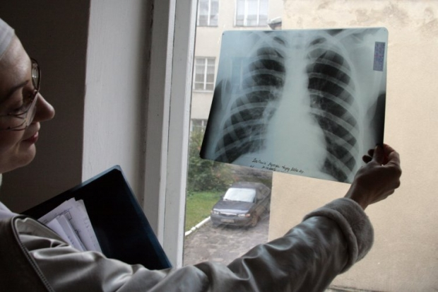 Заболевшая туберкулезом девочка проходит лечение / Фото УНИАН