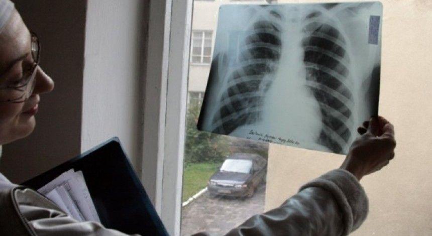 У вчительки львівської школи діагностували відкриту форму туберкульозу