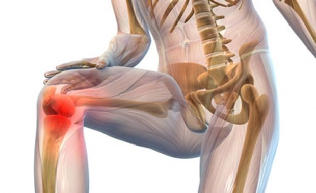 Медики розповіли, як запобігти розвитку хвороб суглобів