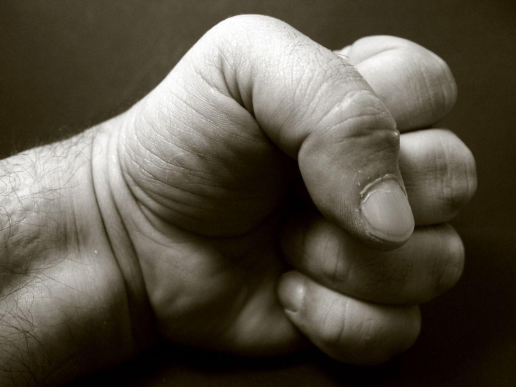 При нанесении удара иностранец поранил себе руку/ Фото Pietro Izzo via Flickr