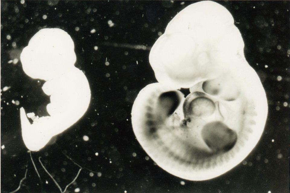 Операція проводилася на синтезованих в лабораторії ембріонах / фото cont.ws