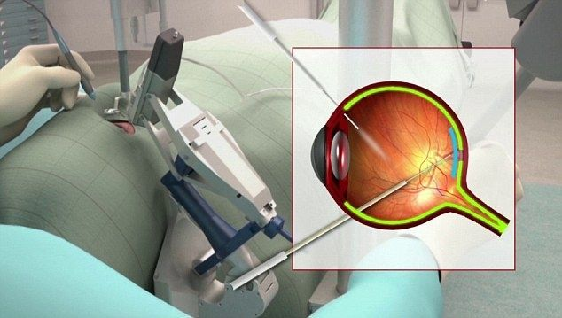Пациент, решившийся на операцию, рассказал, что чувствует себя хорошо и зрение к нему вернулось / Фото: BBC News