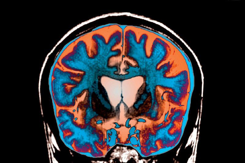 Мозг каждого человека оказался анатомически уникальным / NewScientist