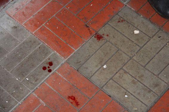 За напад затриманий місцевий житель / Фото cn.npu.gov.ua