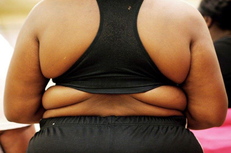 24,8% украинцев страдают ожирением / фото REUTERS