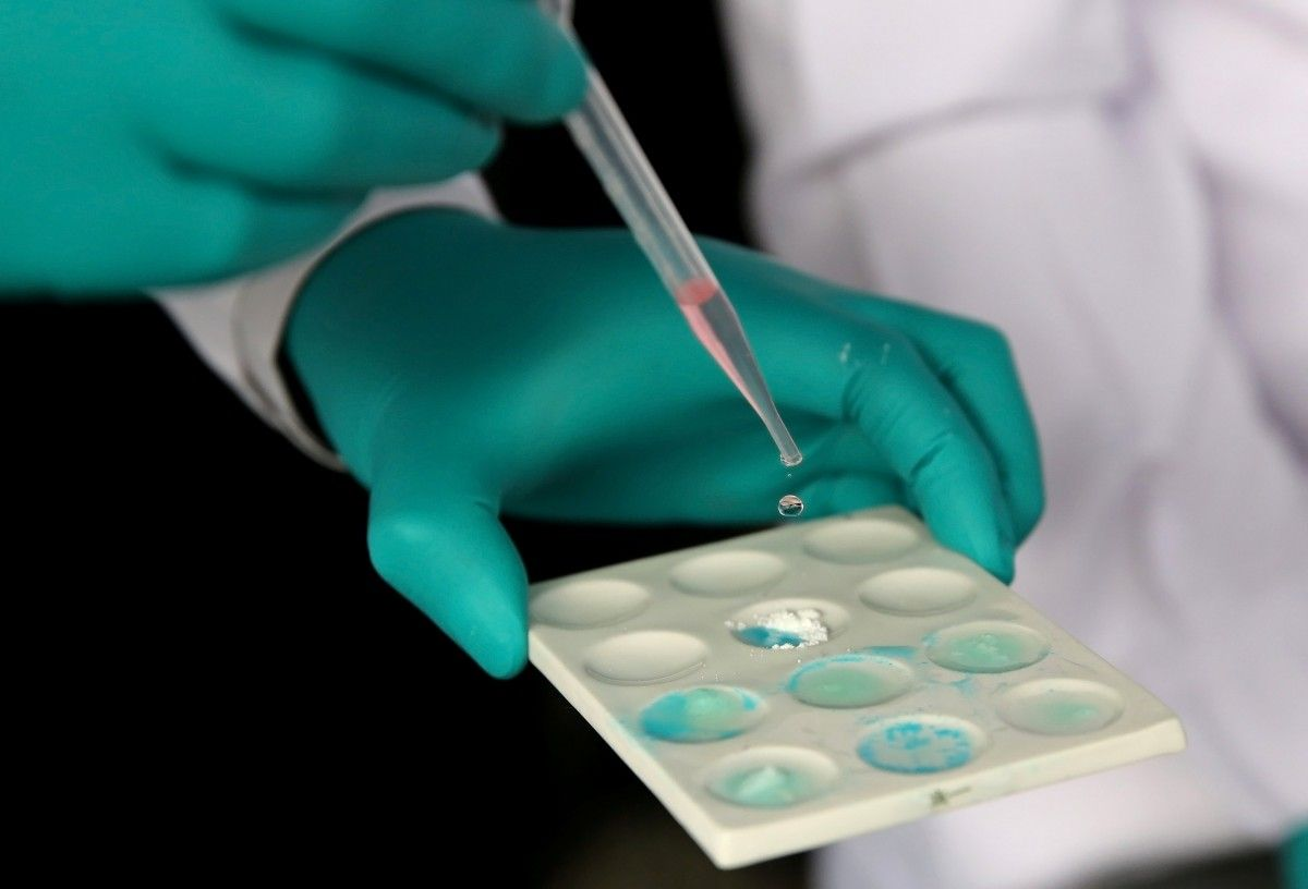 Ученые нашли способ уничтожать клетки рака без химиотерапии/ фото REUTERS