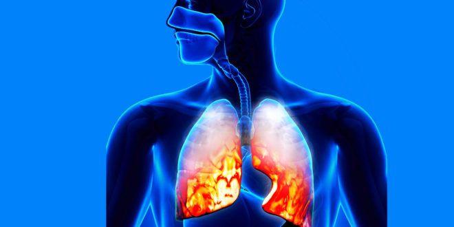 Химические элементы, содержащиеся в табаке, разрушают ДНК клеток легких \ NBN News