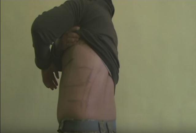 Военные рассказали, что в плену их избивали и ломали кости / Служба безпеки України YouTube