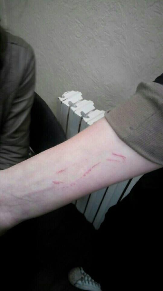 Подростки из Днепра чуть не стали жертвами