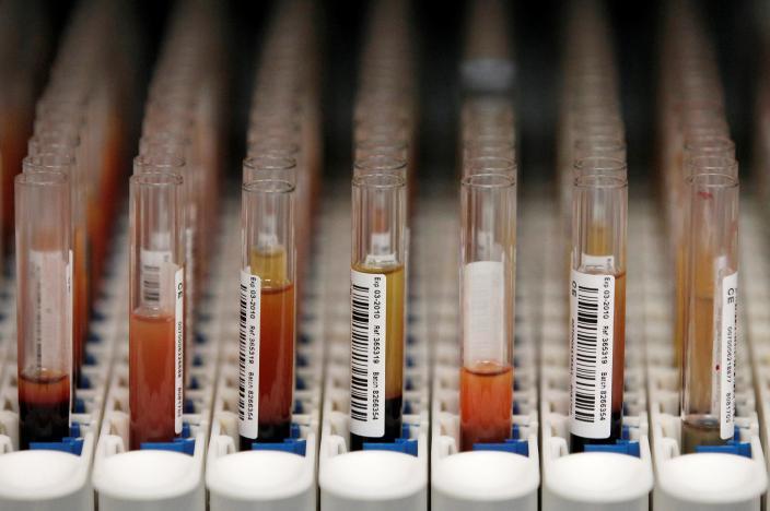 У цей день провели першу в світі операцію з переливання крові від людини до людини / фото REUTERS