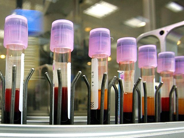 В Севостополі зафиксирован 31 случай коронавируса / newsru.co.il