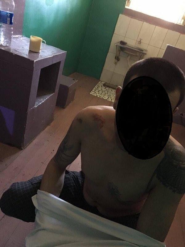 Следы побоев на заключенном / фото: прокуратура Одеської області