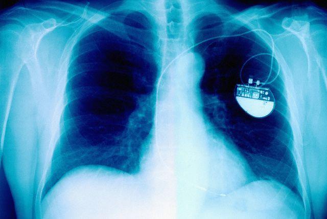 Полмиллиона кардиостимуляторов оказались уязвимыми для хакерских атак