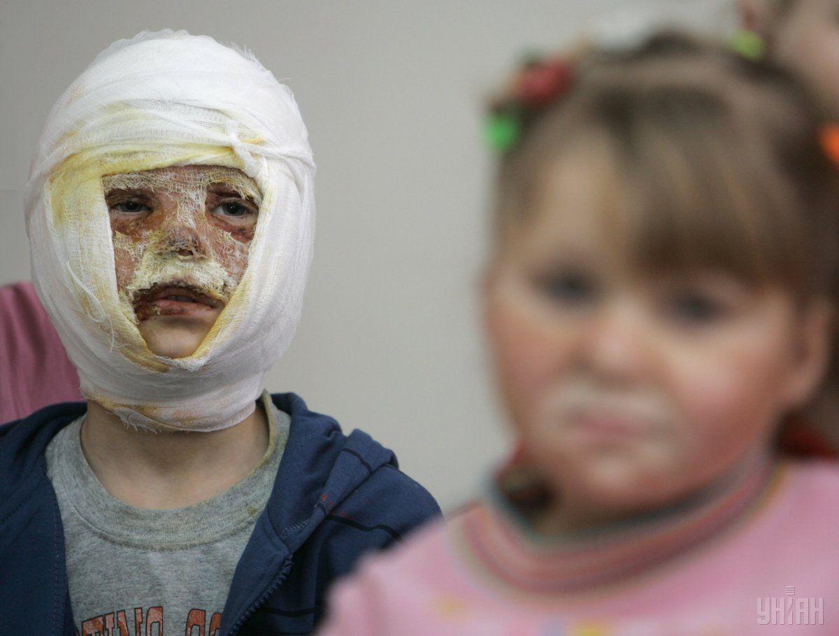 Супрун рассказала о помощипри ожогах / фото УНИАН