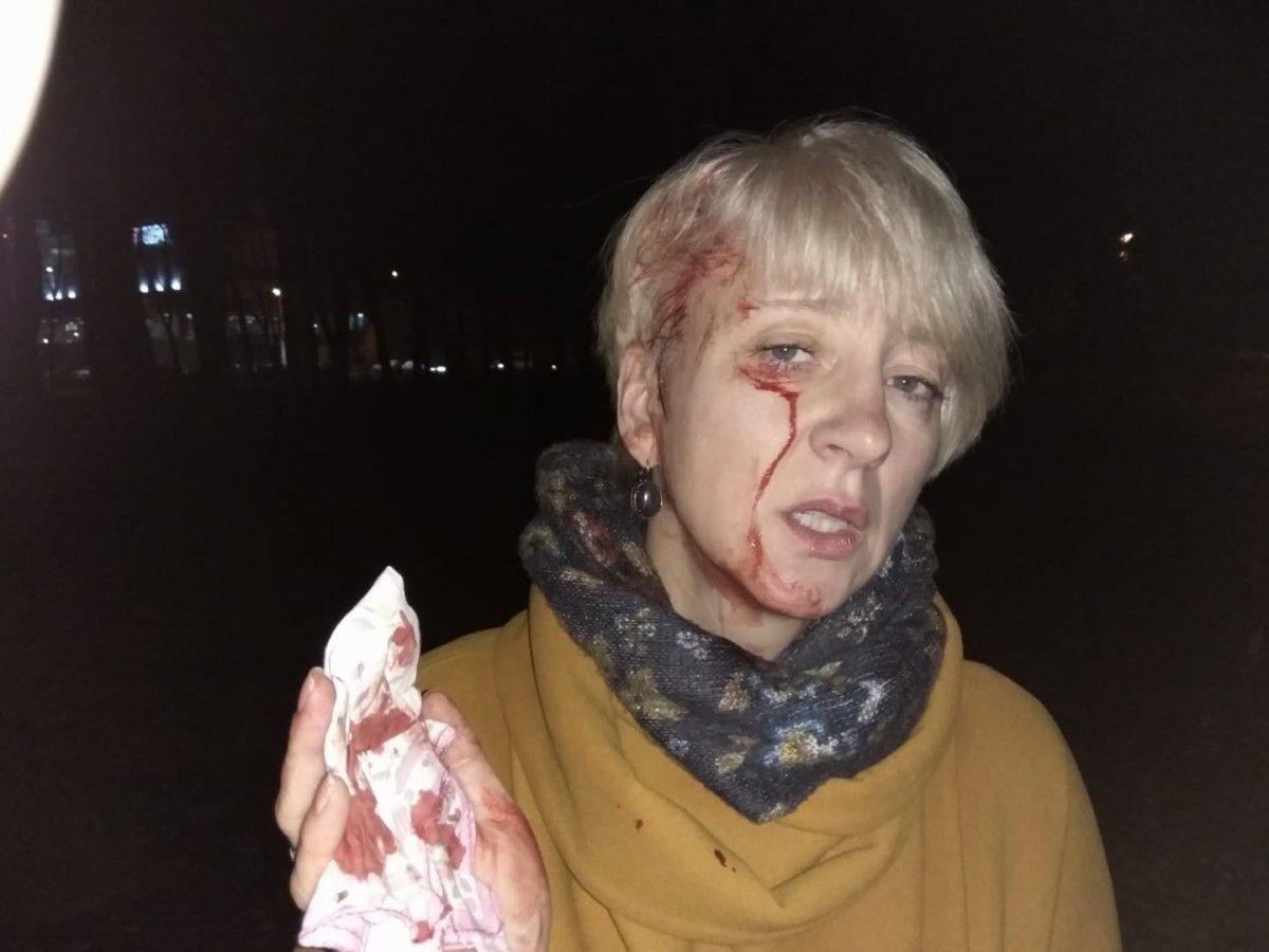 После нападения Гольник и ее мужа обеспечили охраной / фото Лариса Гольник, Facebook