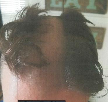 Стилист прошелся триммером по голове клиента, оставив по середине вибритый следует / фото City of Madison Police Department