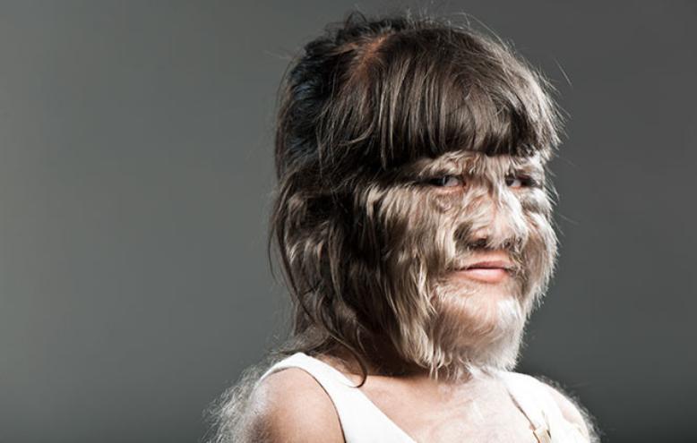 Найволохатіша дівчина світу Супатра Сасуфан одружилася / фото guinnessworldrecords.com