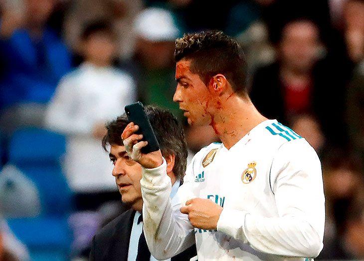 Криштиану Роналду в матче чемпионата Испании разбили бровь / EPA