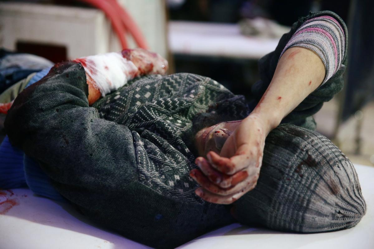 Раненный мужчина в Восточной Гуте / REUTERS