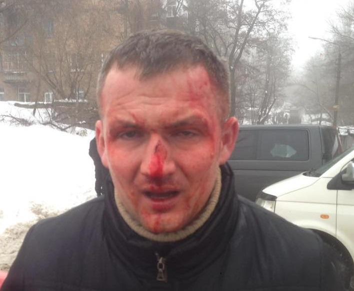 Левченко перебуває в лікарні / фото facebook.com/s.kutniak